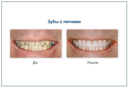 Зубы с пятнами