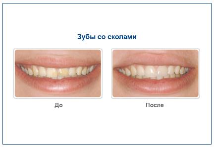 Зубы со сколами