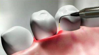 Опыт применения лазерных технологий в стоматологической практике
