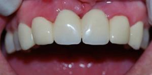 Создавать минимальное ятрогенное повреждение полости рта