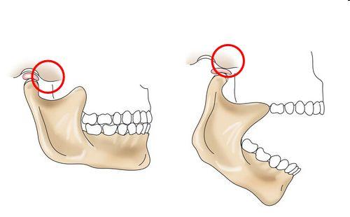 Вертикальные движения челюстью