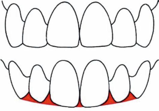Эстетическая постановка зубов