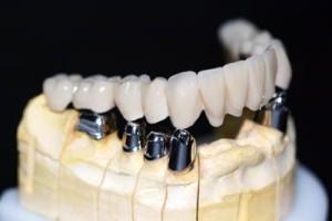Методы фиксации протезов на беззубых челюстях