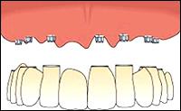 Факторы, обеспечивающие фиксацию на беззубых челюстях