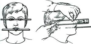 Определение формы и величины зубов. Нанесение антропометрических ориентиров.