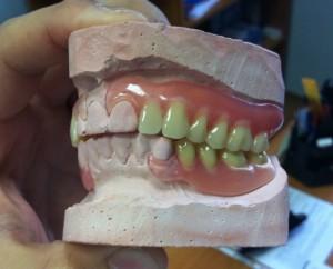 Эстетические аспекты при постановке искусственных зубов