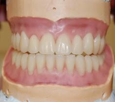 Дополнительные рекомендации по индивидуальной постановке искусственных зубов