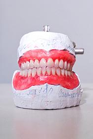 Пришлифовывание искусственных зубов. Изменение формы верхних передних зубов в зависимости от пола пациента