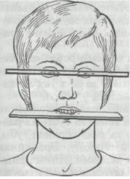 Определение центрального соотношения челюстей