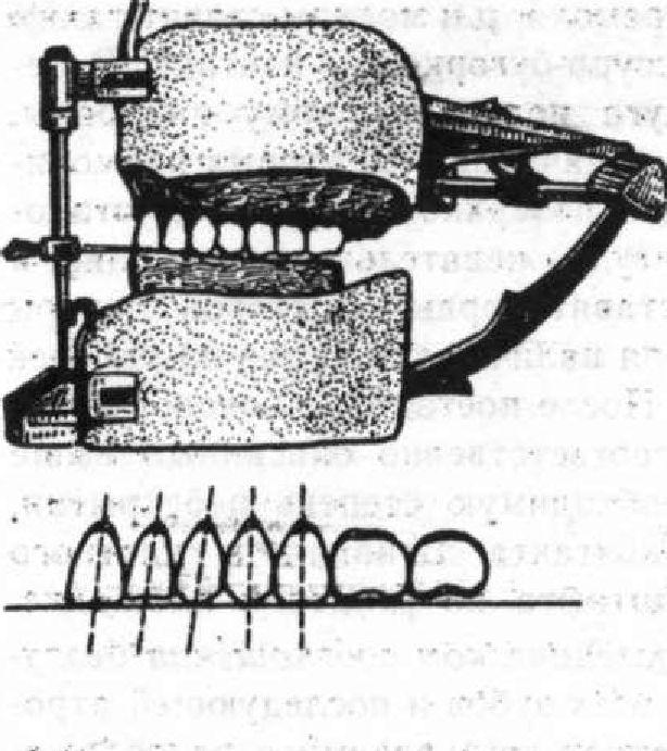 Постановка зубов по Васильеву