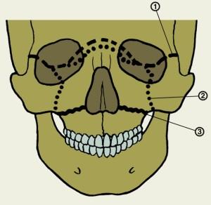Морфологические особенности верхней и нижней челюстей с полным отсутствием зубов
