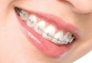 Когда следует обратится к ортодонту?