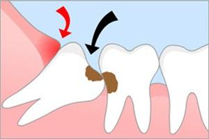 Показания для удаления зубов мудрости