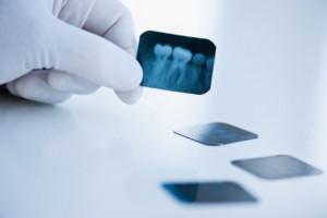 Хирургическая стоматология. Удалять ли зубы мудрости?
