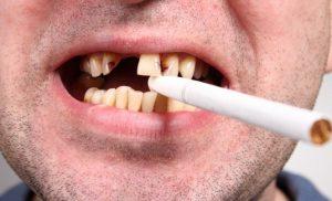 Курение меняет микрофлору полости рта