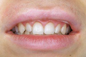 Ультраниры в стоматологии
