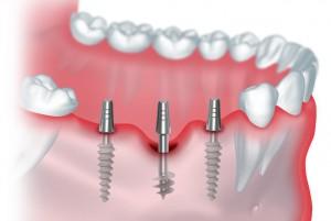 Базальная имплантация зубов с нагрузкой