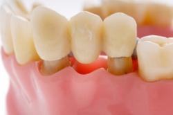 Протезирование зубов на своих зубах