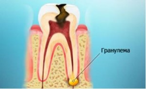 Что такое гранулема зуба?
