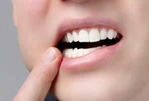 Протезирование зубов с естественным эффектом