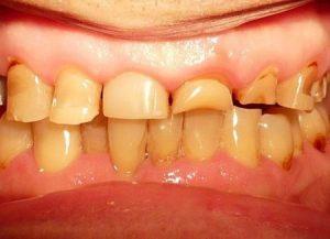 Степени и формы стираемости зубов