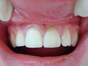 Виды временных зубных протезов