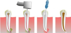 Удаление нерва зуба: вчера и сегодня