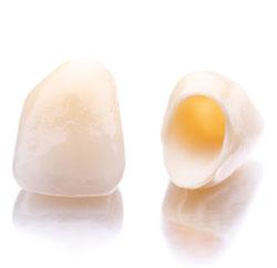 Под коронкой зубы сильно разрушаются