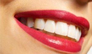 Идеальная улыбка: четыре секрета красивых зубов
