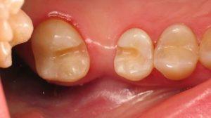 Адгезивное протезирование зубов и накладки