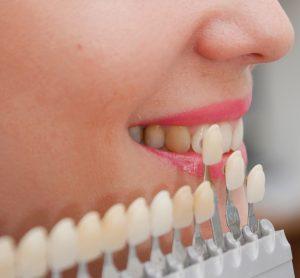Ставят ли виниры на кривые зубы?