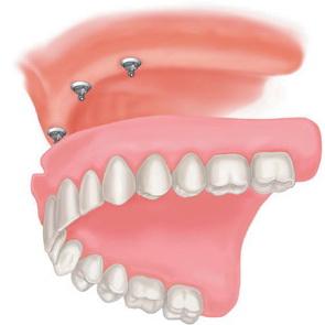 Протезирование зубов импланты