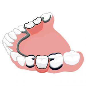 Стоматология и бюгельное протезирование