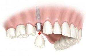 Что делать, если утрачен зуб?