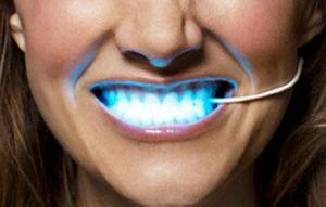 Про лазерное отбеливание зубов