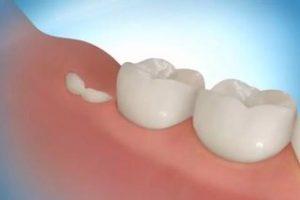 Удалять ли зубы мудрости?
