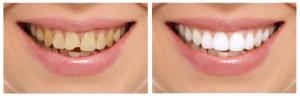 Прямая и непрямая реставрация зубов