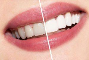 Тонкости и нюансы отбеливания зубов