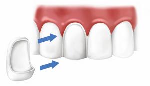 Виниринг зубов в Сумах