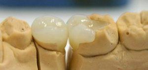 Какие пломбы на зуб лучше всего?