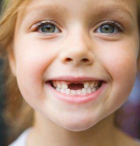 Ребенок потерял постоянный зуб. Что делать?