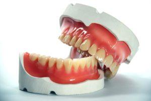 Протезирование зубов или восстановление?