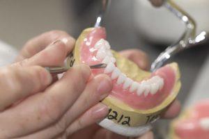 Ремонтируем зубные коронки