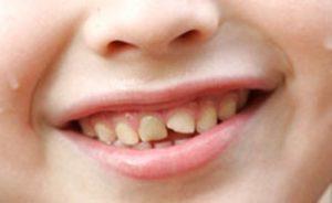Сколы и трещины на эмали зубов
