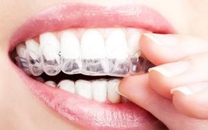 Как долго зубы будут белыми?