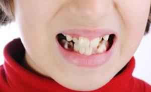 Почему зубы портятся?