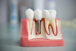 Современная имплантация зубов в Сумах