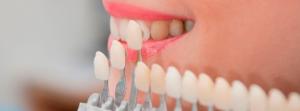 Зубные виниры - новое слово в стоматологии
