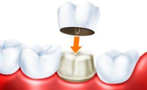 Что такое зубная коронка?