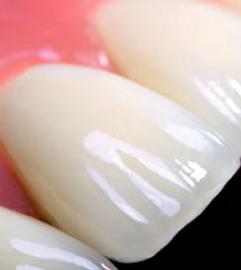 Коронки на зубы. Когда их можно надеть?